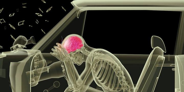 alabama accident injury lawyer